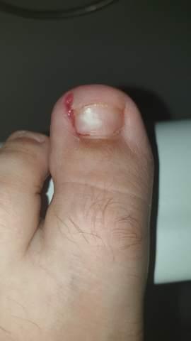Sind diese Nagelbetteiterungen schon schlimm?