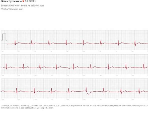 Sinusbradykardie Apple Watch 6 Auffälliges 1 Kanal EKG?