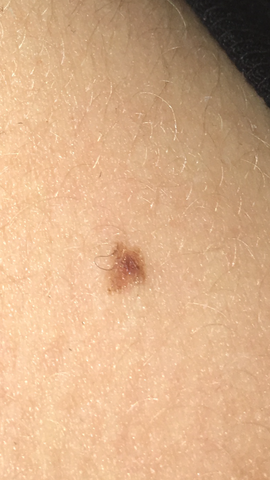 vv - (Haut, Dermatologie, Muttermal)