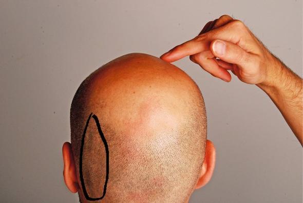 Stechender Schmerz Ohr Kopfhaut