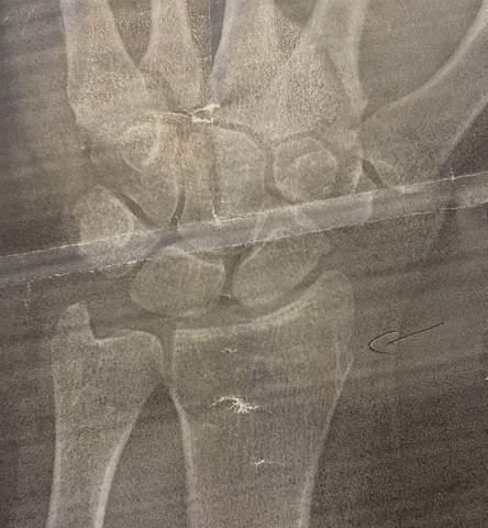 Speiche gebrochen/ Handgelenk gebrochen?
