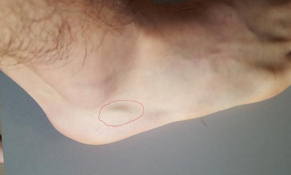 Spitzer Fußknochen?