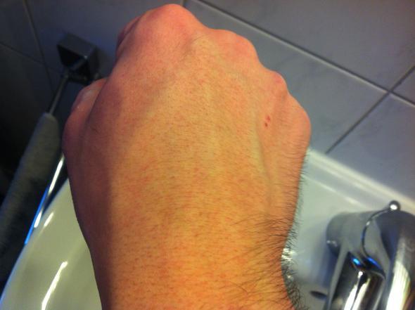 sporadisch schmerzen im linken Arm.. kribbeln taubheit