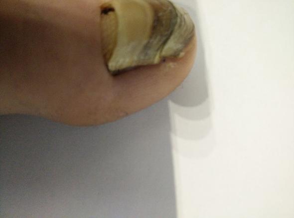 Zehnagel 5 - (Zeh, Fußnägel, Zehnagel)