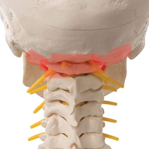- (Hws Kopf, Wirbelsäule orthopäde )