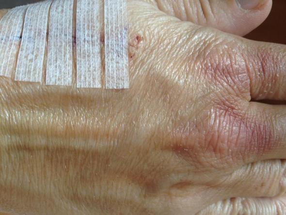 Hand nach Faden entfernen - (Hand, Rötung, Bluterguss)