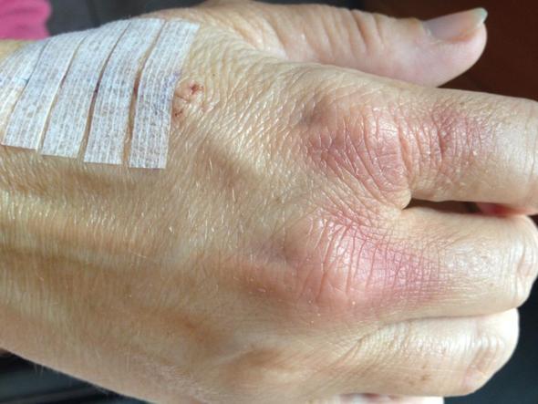Gerötete Knöchel, aber nicht nahtstelle. - (Hand, Rötung, Bluterguss)