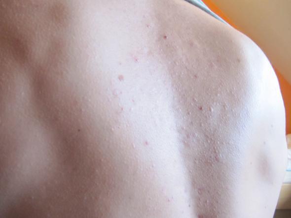 Talgablagerung (Haut, Pickel, Hautprobleme)