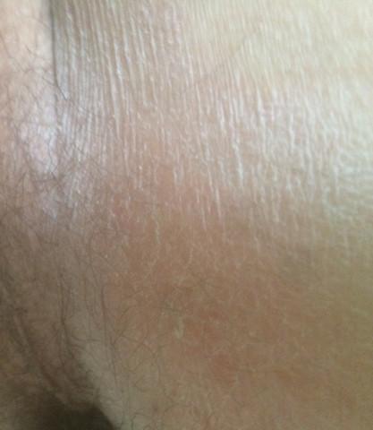 Trockene schuppende Haut - Analbereich?