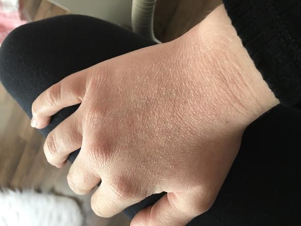 Ist das erste mal jetzt aufgetreten  - (Haut, Hand, Dermatologie)