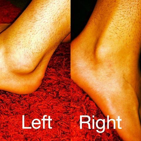 Differenz Linker Fuss(Verletzter) zum Rechten Fuss - (Schmerzen, Füße, Schwellung)