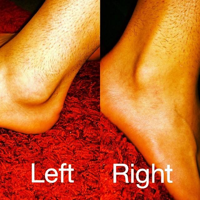 Umgeknickt Knöchel geschwollen aber nicht Blau (Schmerzen, Füße, Schwellung)