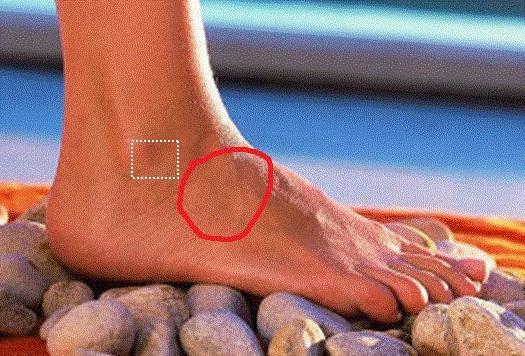 Hat den Nagel auf dem Bein abgeschlagen als, zu behandeln