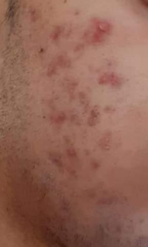 Unreine Haut durch jeden Tag heiß duschen?