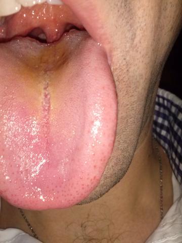 Zunge - (Magen, Mund, Zunge)