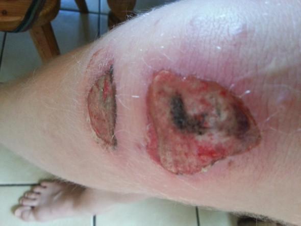 Verletzung am Knie dann wieder Narbenfrei?