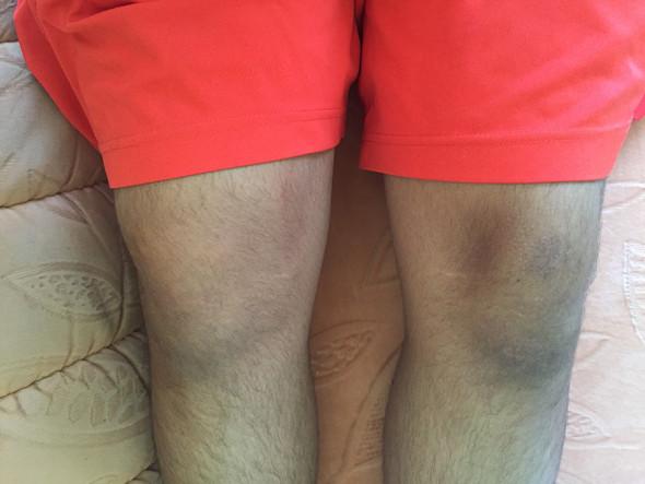 VKB Ruptur rechtes Knie MRT: Wie sieht es aus mit Kontaktsport z.B. Wrestling, wegen dem Aufprallen des Knies auf die Ringmatte?