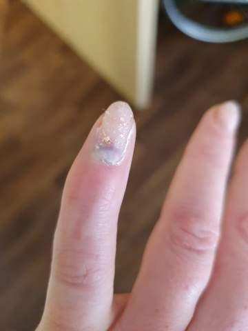 Wächst der Nagel raus oder muss ich damit zum Arzt?