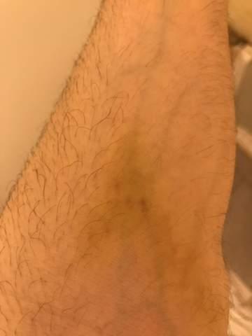 Warum habe ich diese Grünen Flecken auf meiner Haut bekommen? Was ist das?