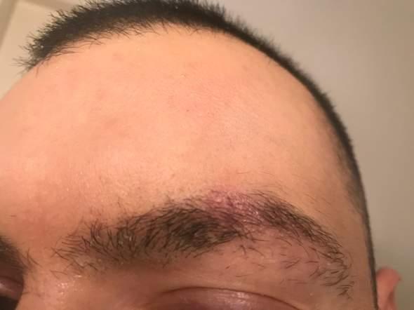 Warum habe ich diese rote Stelle an meiner Augenbraue?
