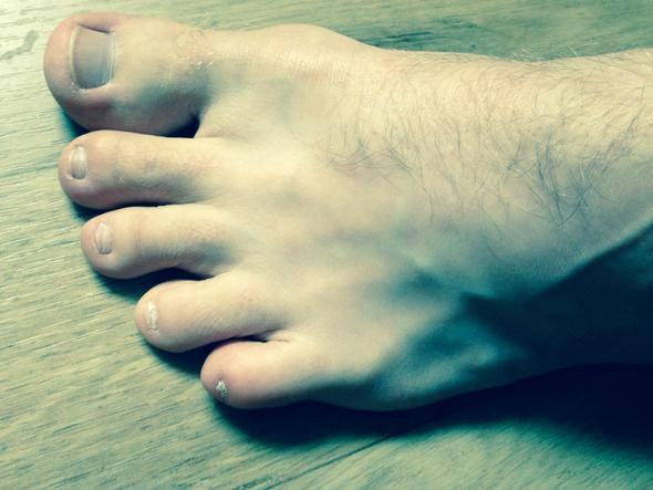 Komischer Nagel am kleinen Zeh - (Füße, Zeh, Nagelpflege)