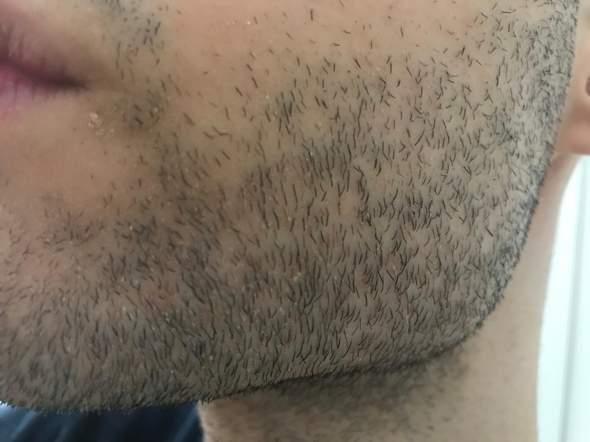 Warum ist meine Haut unter meinem Bart so schlimm? habe ich eine Hautkrankheit?