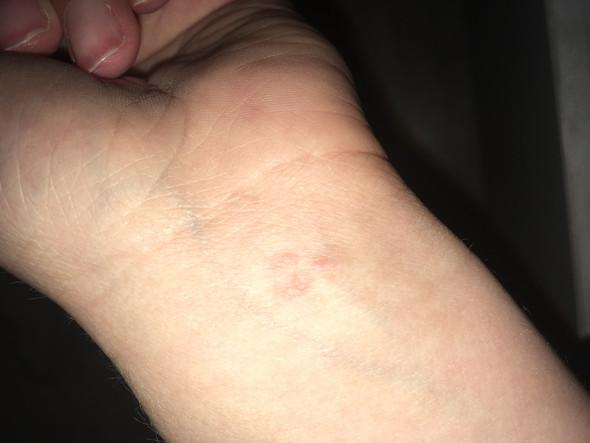 So sieht das aus - (Haut, Krebs)