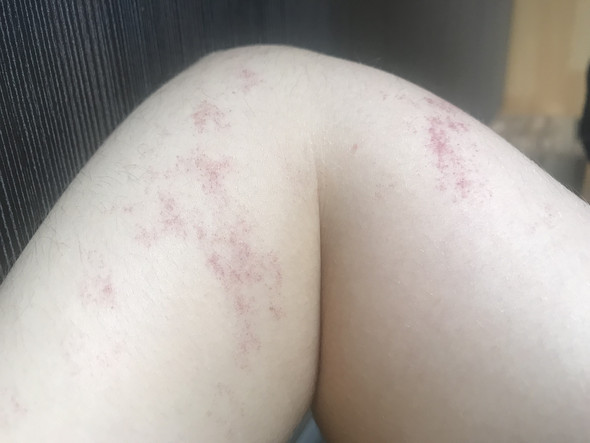- (Haut, Gesundheit, Dermatologie)