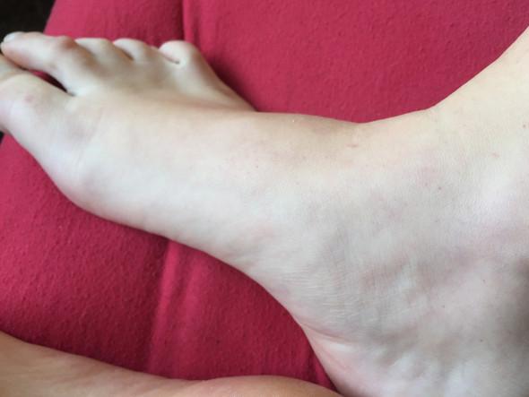 Fuß petechien blau unterm