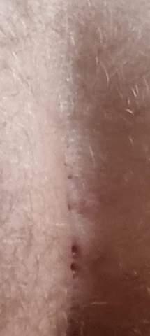 Was ist das an meinem Hintern?