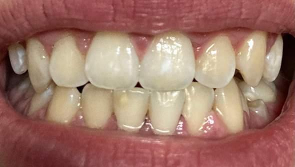 Was ist das an meinem Zahn?