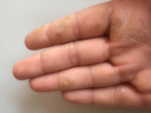 Was ist das auf meiner rechten Hand?