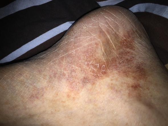 Was ist das für Ausschlag an den Füßen?