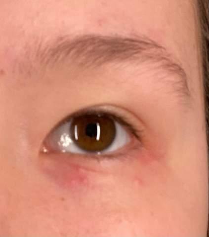 Was ist das für ein Ausschlag am Auge?