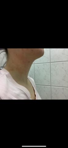 Was ist das für ein Ausschlag am Hals?