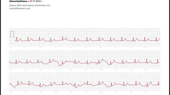 Was ist das in meinem EKG?