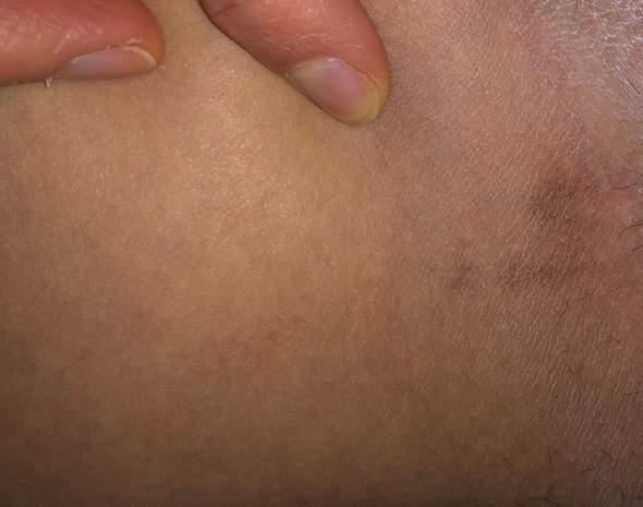 Was ist das zwischen den Beinen?
