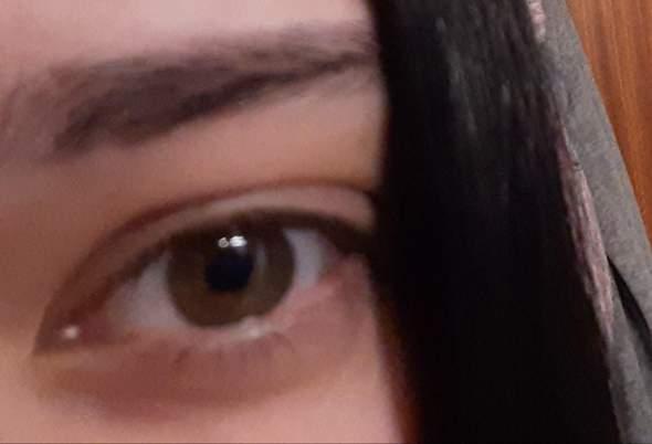 Was ist mit meinem rechten Augenlid los?