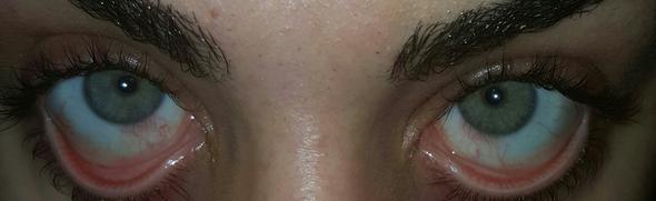 Augen - (Augen, Augenarzt, Kontaktlinsen)