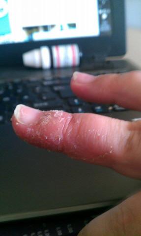 Finger4 - (Juckreiz, Finger, Taubheitsgefühl)
