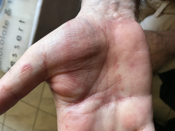 Was ist das - (Haut, Dermatologie, Pilze)