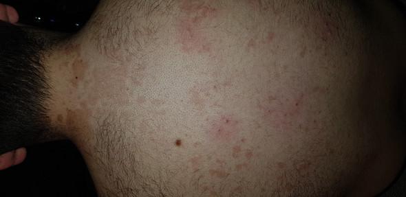 Was sind das für braune Flecken auf meinem Rücken?