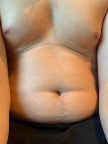 Was sind das für Streifen am Bauch? Wie kann ich sie loswerden?