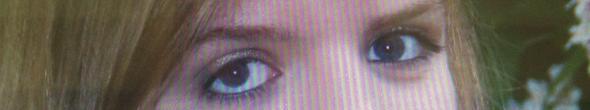Auge - (Augen, Augenarzt, Augenheilkunde)