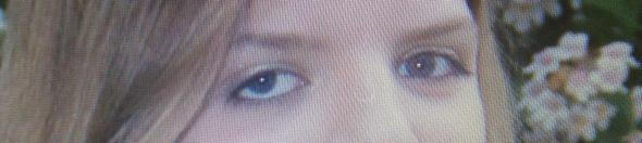 Augee - (Augen, Augenarzt, Augenheilkunde)