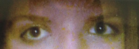 Augeee - (Augen, Augenarzt, Augenheilkunde)