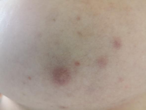Was tun gegen sehr schlimme Hautunreinheiten auf der Brust?