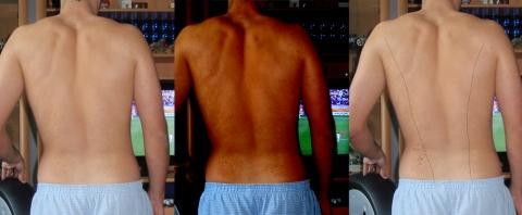 Flecken - (Haut, Rücken, Flecken)