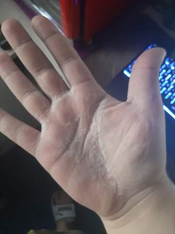 Weiße stellen in der Handfläche?