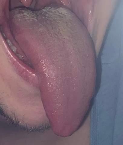 Weißer Belag auf der Zunge normal?